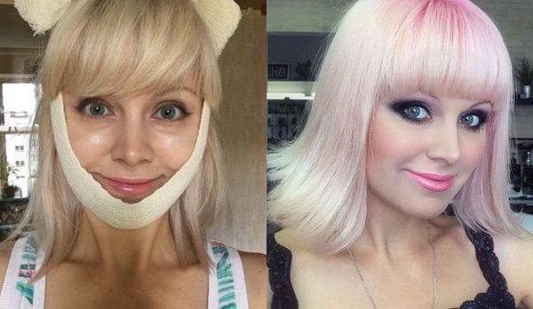 Фото Натали до и после пластики