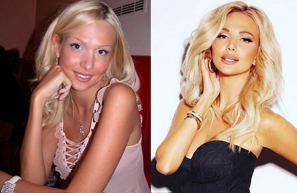 Фото Виктории Лопыревой до и после пластики