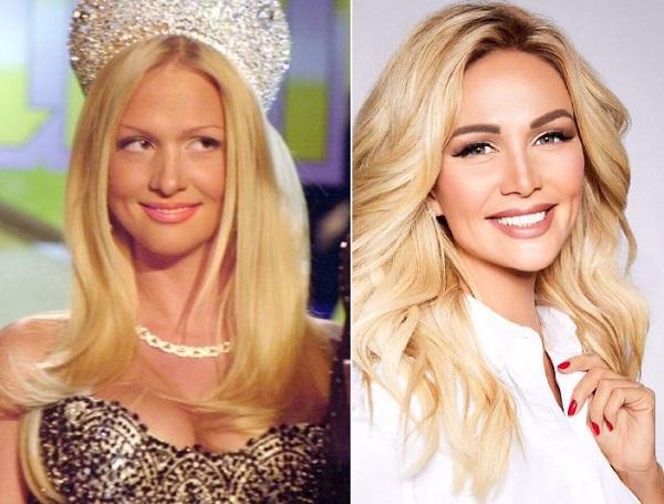Вика Лопырева до и после пластики