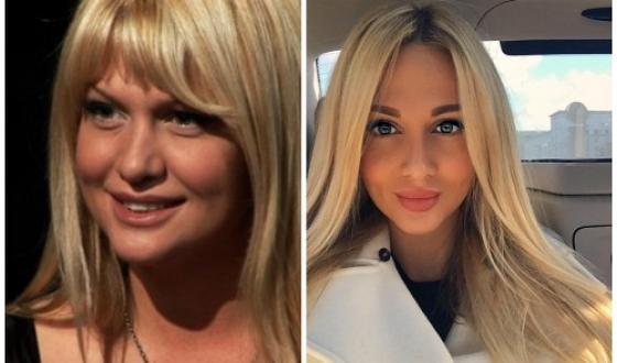 Виктория Лопырева до и после пластики фото