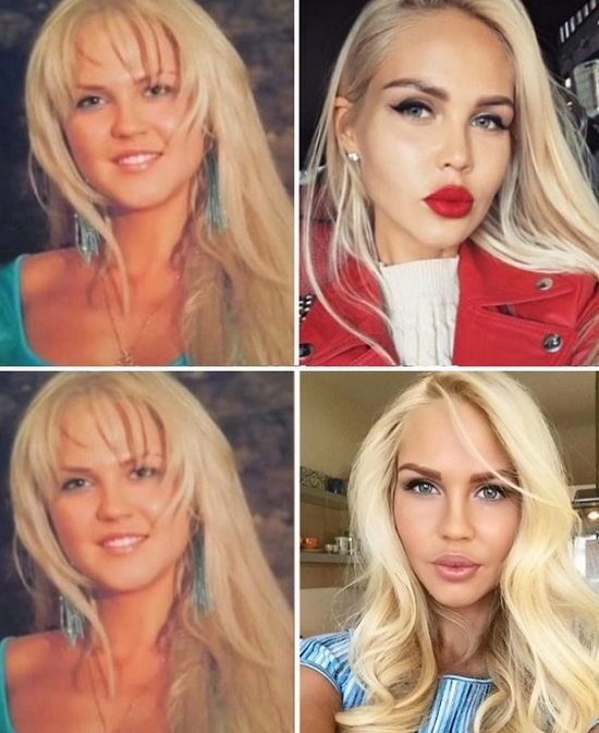 Мария Погребняк до и после пластики фото