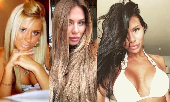 Анастасия Ковалева до и после пластики фото
