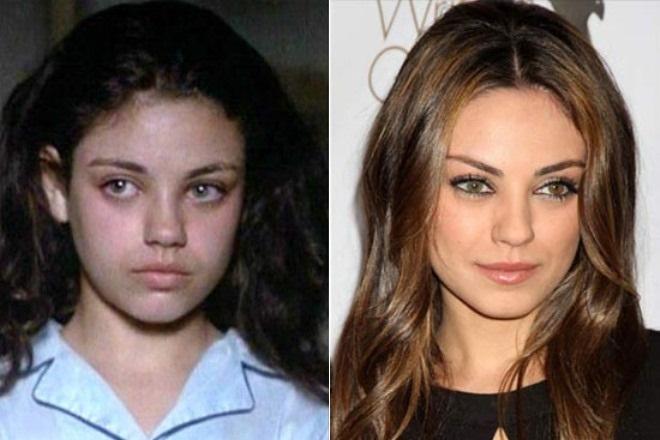 Мила Кунис до и после пластики фото